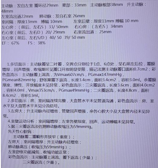 D:\WeChat Files\wxid_suv5qfzg56o722\FileStorage\Temp\a67aa2af8f7929f221598350440a8403.png